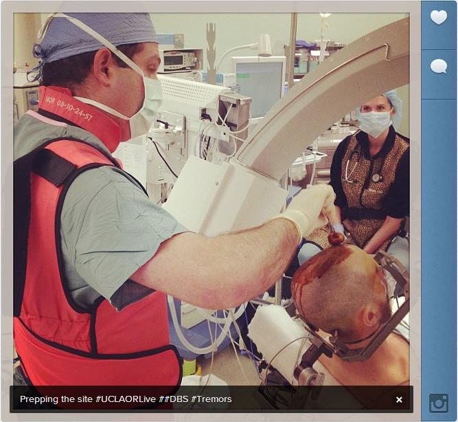 6 Saniyede Beyin Ameliyatı