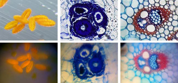 iphone_microskop