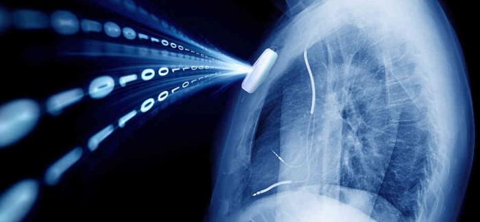 dijital akciğer