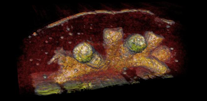 Yapay Zekayı Ultrason ve MRla Birleştiren Yeni Girişim