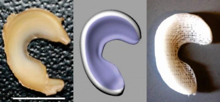 Doktorlar Artık 3D Yazıcı ile Diz Eklemi Üretebilecekler