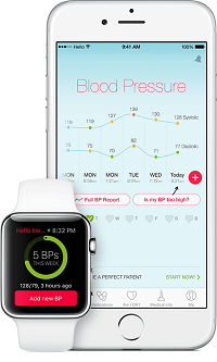 homepage_iphonewatch