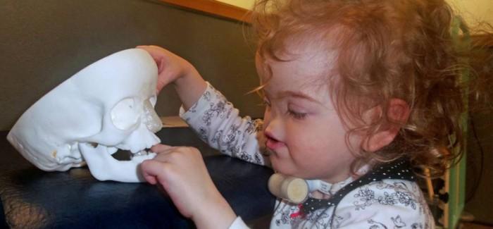 Küçük Tessa'nın Umudu: 3D Yazıcı