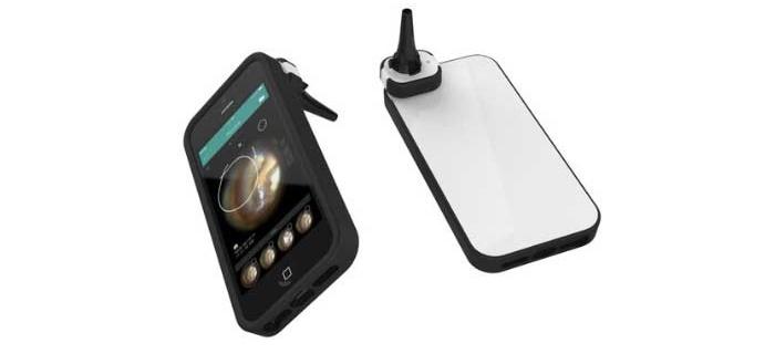 Cupris, Yeni Geliştirdiği iPhone Bağlantılı Otoskop İçin Deneylere Başlıyor