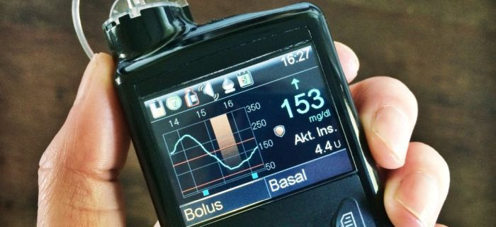 Tip 2 Diyabet Hastalarına Medtronic ve Qualcomm Life'tan Destek