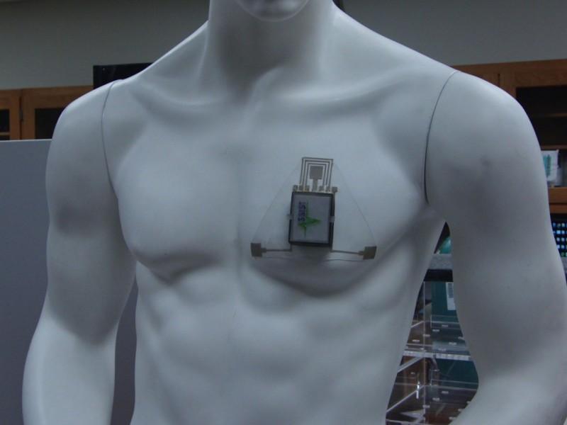 HET-chest-patch-FULL-1160x870