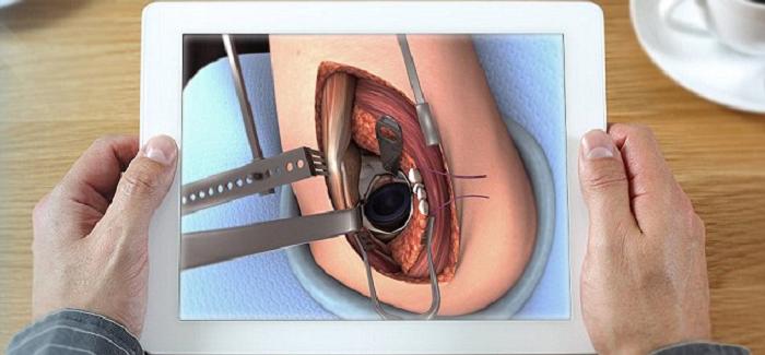 Ethicon Doktorları ve Tıp Öğrencilerini Eğitmek İçin Touch Surgery ile Ortaklığa Girdi
