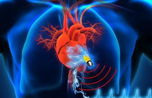 Vücut Sıvısını Yakıt Olarak Kullanabilen Kalp Pili Üretildi