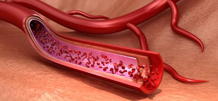 İskemi Tedavisi İçin 3D Biyo-Baskı Tekniğiyle Kan Damarı Üretildi
