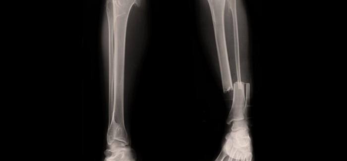 Kırık Kemik Tedavisinde Kullanılan Yeni Bir İmplant, Vücutta Gerçek Kemiğe Dönüşebiliyor