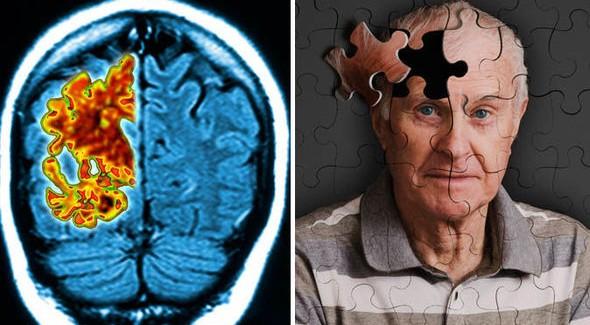 """Alzheimer Tedavisinde """"Beyin İmplantı"""" Dönemi"""