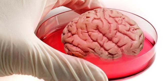 """""""Yapay Beyin"""" Geliştiren System1 Biosciences, 25 Milyon Dolar Yatırım Aldı"""