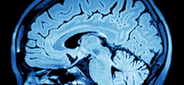 Bilim İnsanları, Beyin Sinyallerini Konuşmaya Çevirmenin Yolunu Buldu