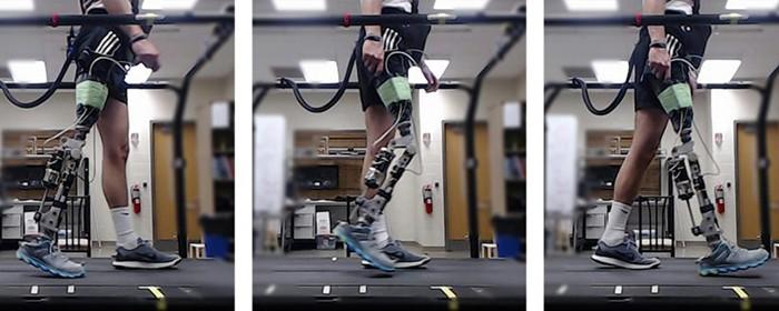 Yapay Zeka Destekli Robotik Bacaklar ile Ampüteler Dakikalar İçinde Yürüyebilecek